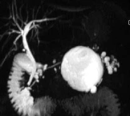Pancreatic Cystic Lesions: Diagnostic, Management and Indications for Operation. Part I