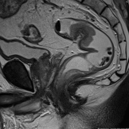 The Importance of Preoperative Staging of Rectal Cancer Using Multiparametric MRI. A Systematic Review - Part I