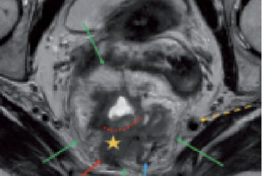 Imaging and Diagnosis for Planning the Surgical Procedure